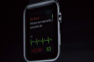 بیشتر خریداران از خرید Apple Watch راضی هستند